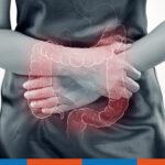 Therapieoptionen bei chronisch entzündlichen Darmkrankheiten | Praxis Schleicher & Brückl