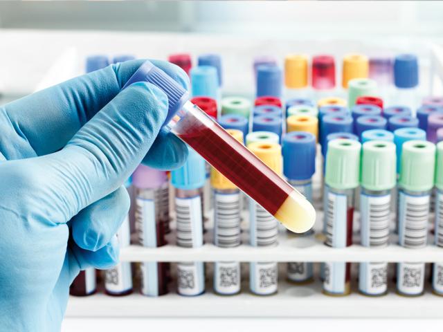 Hämochromatose: Wie stelle ich sie fest? | Praxis Schleicher & Brückl